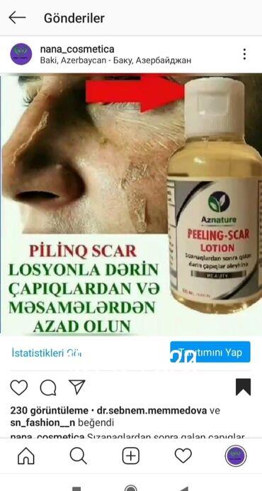 - Azərbaycan: Piling scar lasyon sızanaq lekeleri ve çapıqların müalicəsi üçün 25azn