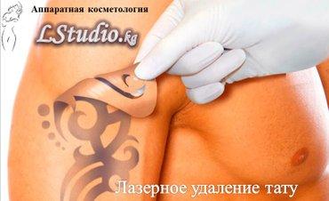 удаление всех видов тату Впервые в Кыргызстане!  www. Lstudio. Kg в Бишкек