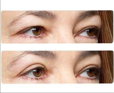 Lepota i zdravlje | Srbija: Trakice za podizanje ocnih kapaka 200 din 20 pari (ukupno 40 trakica)