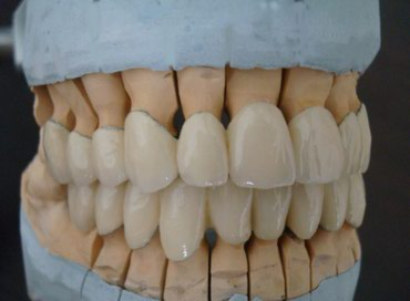 Стоматолог, металлокерамика, зубы, в Бишкек