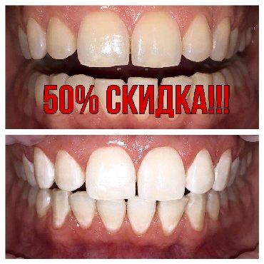 стоматологических услуг в Кыргызстан: Акция!!!!! 50%скидка на чистку!!  Все виды стоматологических услуг. Ле