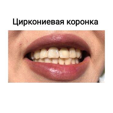 1064 объявлений: Стоматолог   Реставрация, Протезирование, Чистка зубов   Консультация, Круглосуточно