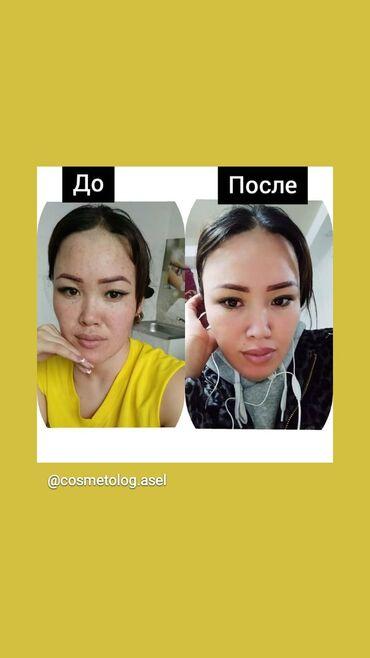 Красота и здоровье - Кыргызстан: Косметолог | Лечение угревой болезни, Мезотерапия, Отбеливание пигментных пятен | Консультация
