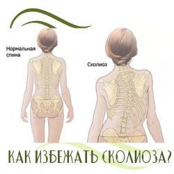 Корсет для спины №КОРРЕКТОРЫ ОСАНКИ 9-11 видов(взрослые и