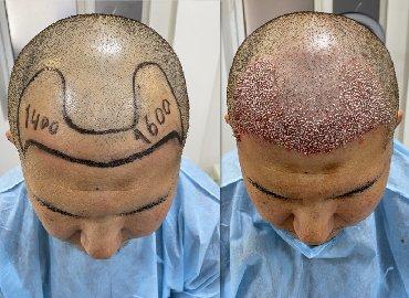 Мода, красота и здоровье в Кыргызстан: Пересадка волос  Впервые в Кыргызстане пересадка волос !!!  по уникал