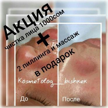 Врач Косметолог Акция Акция Акция в Бишкек