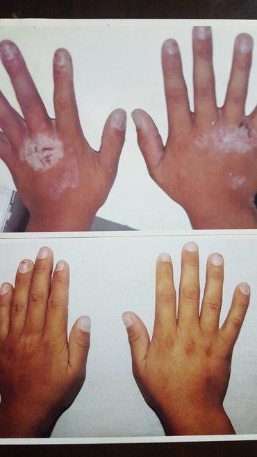 лечу экзему,псориаз,демодекс (клещ) -услуги красоты и здоровье 100% ре в Бишкек