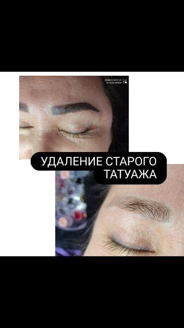 Запчасти на 99 - Кыргызстан: Брови | Удаление татуажа