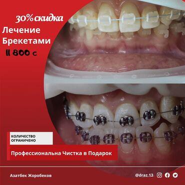 ассистент стоматолога бишкек in Кыргызстан | СТОМАТОЛОГИЯ: Стоматолог | Чистка зубов, Фотопломбы, Брекет системы, пластинки | Консультация