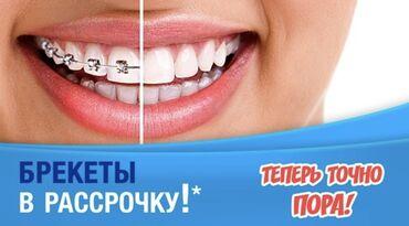 морозильники в рассрочку в бишкеке in Кыргызстан | SAMSUNG: Стоматолог | Брекет системы, пластинки | Консультация