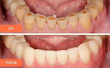 Стоматолог Врач стоматолог Стоматолог ортопед Коронки Протезы Коронка
