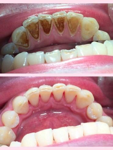 услуги стоматолога в Кыргызстан: Профессиональная чистка зубов всего 1000 сом. Жибек-жолу/Усенбаева   #