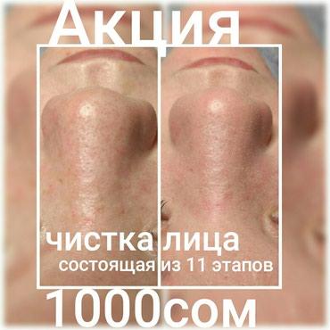 Врач косметолог.с.высшим мед. образованием в Бишкек