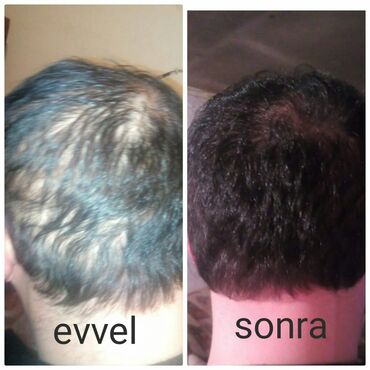 банты для волос в Азербайджан: Saç tokulmesi global problemdir. Bu problemi size hell etmeye Ersag