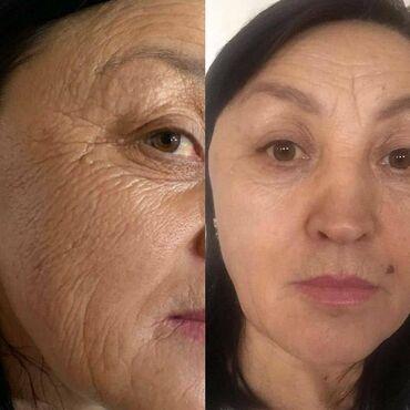Услуги - Арашан: Косметолог | Лечение угревой болезни, Лифтинг, Маски