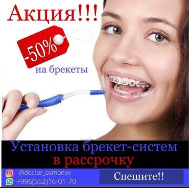 Услуги - Бишкек: Стоматолог | Брекет системы, пластинки | Консультация