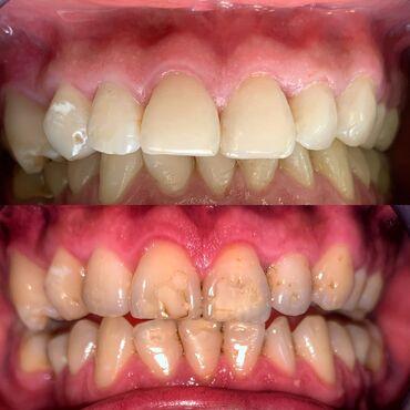 ассистент стоматолога бишкек in Кыргызстан | СТОМАТОЛОГИЯ: Стоматолог | Реставрация, Протезирование, Чистка зубов | Консультация