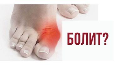 Косточка на большом пальце ноги?! в Бишкек