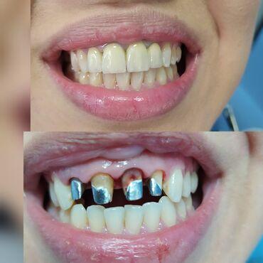 отдам видеокарту даром в Кыргызстан: Стоматолог | Реставрация, Протезирование, Чистка зубов | Консультация