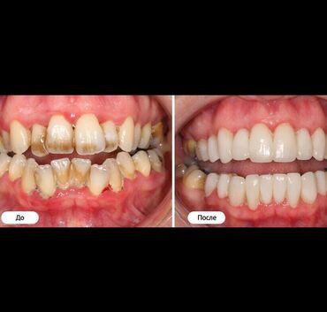 ассистент стоматолога бишкек in Кыргызстан   СТОМАТОЛОГИ: Стоматолог   Реставрация, Протезирование, Чистка зубов   Консультация