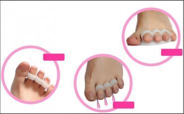 Uložak za ispravljanje nožnih prstiju - Valjevo