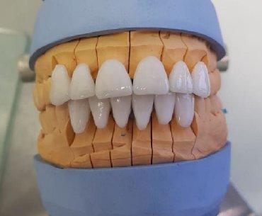 stranica v instagram в Кыргызстан: Стоматолог . Акция Чистка полный рот плюс полировка пломба удален