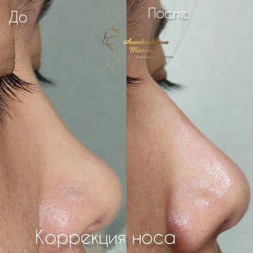 Косметолог   Контурное моделирование   Консультация, Гипоаллергенные материалы, Сертифицированный косметолог