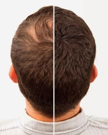 Сaboki – загуститель для волос, который маскирует проблемные места, бл