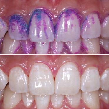 Рентген зубов бишкек цены - Кыргызстан: Стоматолог   Реставрация, Протезирование, Чистка зубов   Консультация