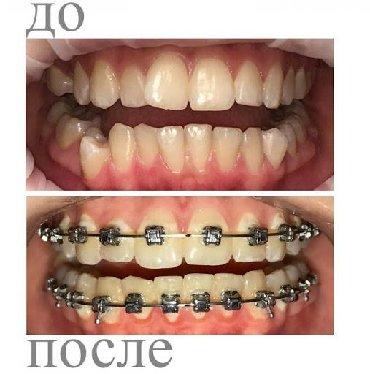 Жалюзи в рассрочку - Кыргызстан: Стоматолог | Брекет системы, пластинки