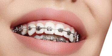 Брекет и все виды стоматологических услуг