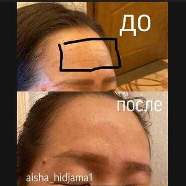 Хиджама косметологическая после первой процедуры