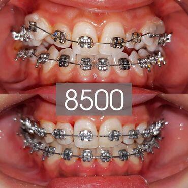 ассистент стоматолога бишкек in Кыргызстан | СТОМАТОЛОГИЯ: Стоматолог | Брекет системы, пластинки | Консультация