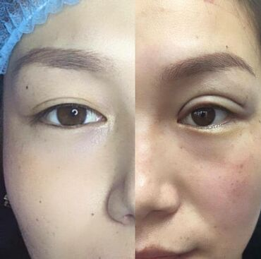 веб модел в Кыргызстан: Косметолог | Подтяжка