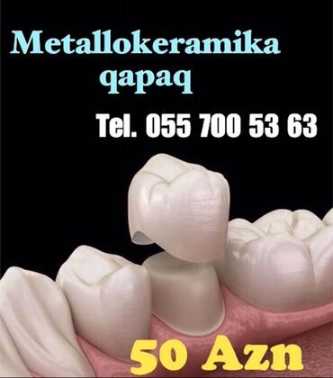 вакансии ассистента стоматолога в Азербайджан: Dişə qapaq