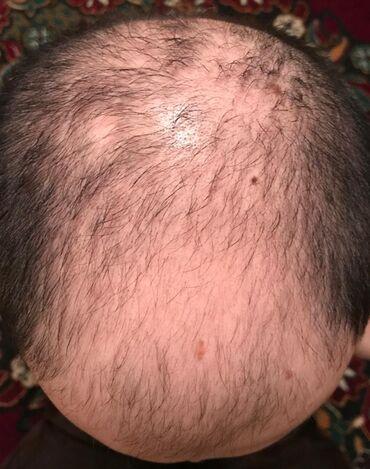 beard growth результаты в Кыргызстан: Миноксидил в городе Ош Minoxidil kirkland оригинал 100% Миноксидил 5%