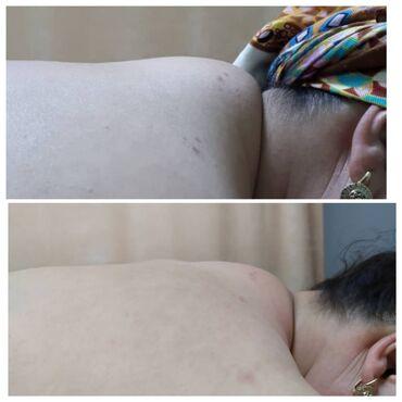 щетка для сухого массажа бишкек в Кыргызстан: Биомассаж, массаж гуаша, массаж туйна игло терапия, вакуумные