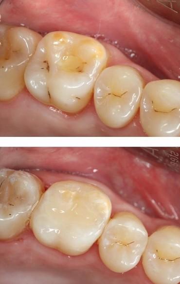 👩⚕️🧚♀️Лечение зубов ‼БЕЗБОЛЕЗНЕННО ‼КАЧЕСТВЕННО ‼СТЕРИЛЬНО‼  ✅Лечени