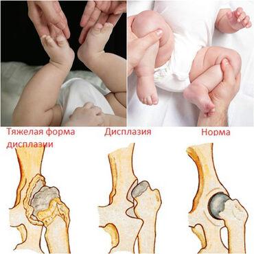 Профессиональное лечение дисплазии тазобедренного сустава. Массаж, эле