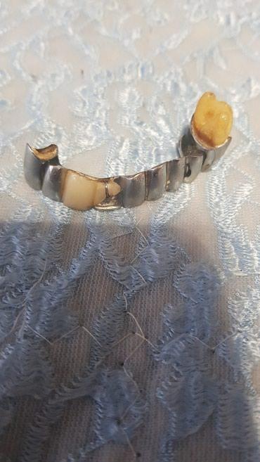 Otkup zubnog paladora mostovi krunice lim sve od paladora dolazim