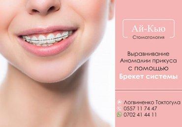 Брекеты — путь к ровным зубам и красивой улыбке! Ношение брекетов в в Бишкек