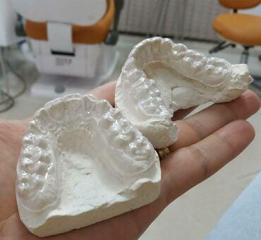 Фиксирующие-удерживающие каппы,после ортодонтического лечения!