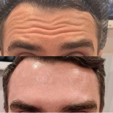 Косметолог   Ботокс   Консультация, Гипоаллергенные материалы, Сертифицированный косметолог