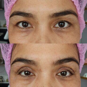 Услуги - Аламедин (ГЭС-2): Косметолог   Другие услуги косметологов   Консультация, Гипоаллергенные материалы, Сертифицированный косметолог