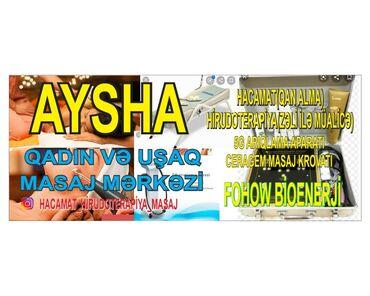 mualice - Azərbaycan: Hacamat(qan alma) hirudoterapiya (zeli ile mualice)qadin ve uwaq