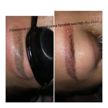 Профессиональное удаление некачественного татуажа бровей