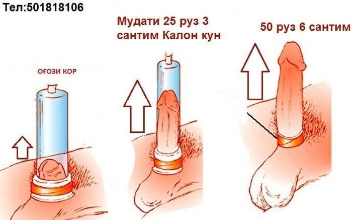 Вакуумная помпа для увличеня полового 100%. Photo 0