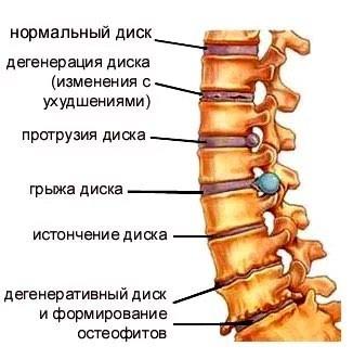 Лечение остеохондроза позвоночника,. Photo 0