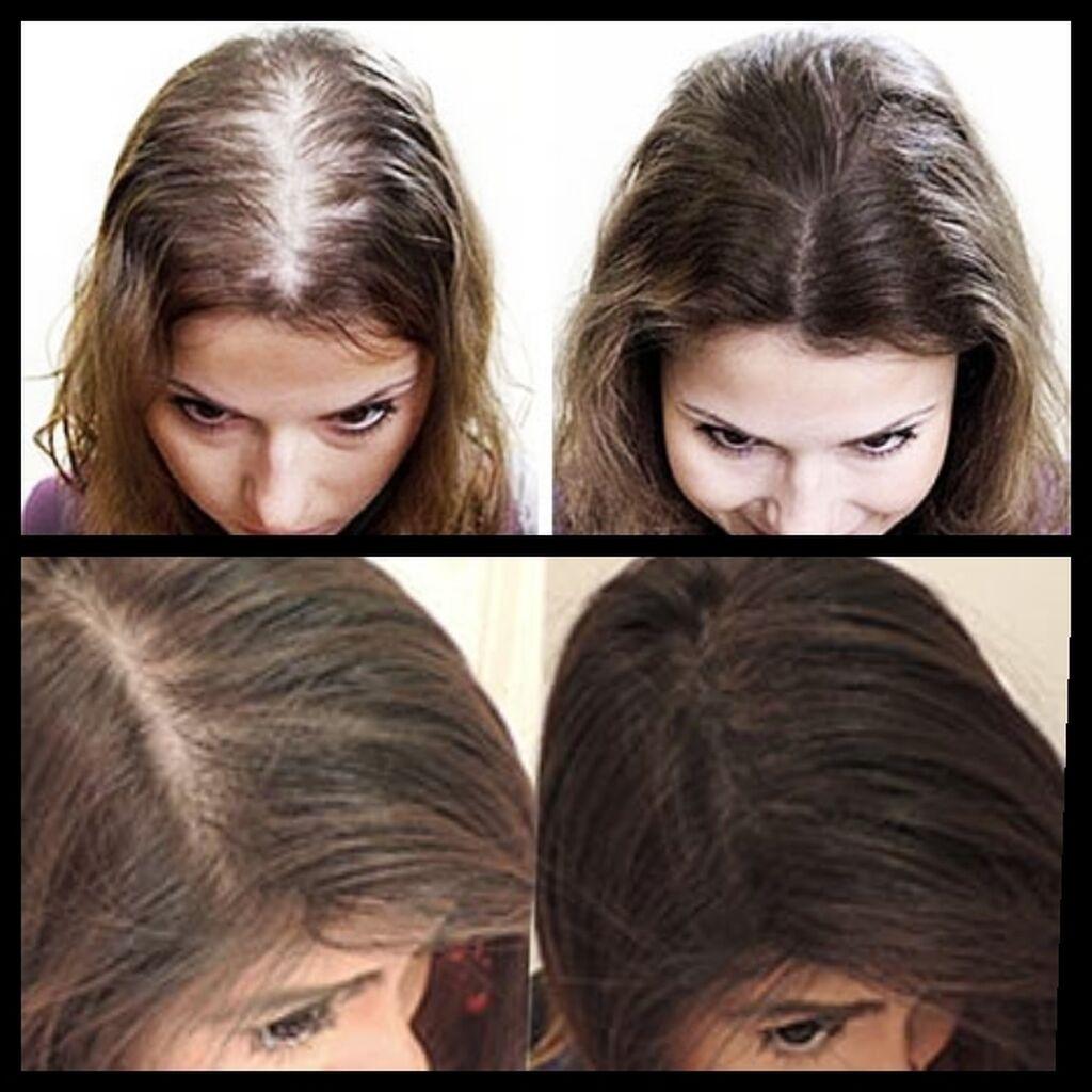 Загуститель для волос Топпик – это 100% натуральный продукт. Кератинов: Загуститель для волос Топпик – это 100% натуральный продукт. Кератинов