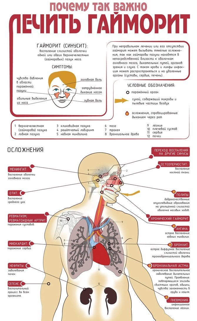 Лечение гайморита. в Душанбе